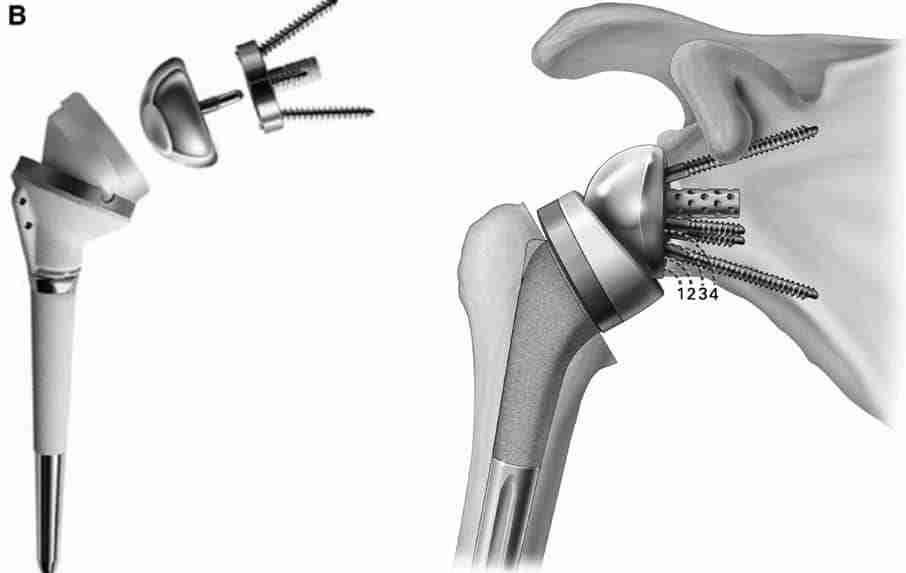 reverse shoulder replacement surgery
